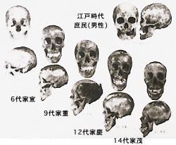 歴代徳川将軍と江戸時代庶民の頭骨。庶民と貴族では著しい違いが認められる