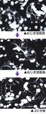 主葉枕の骨格を形成するタンパク質「アクチン」の分布写真。おじぎ運動前にあった網目状のアクチンの丸い束が、おじぎ運動後に崩れ、20分程度するとまたアクチンの束が形成される