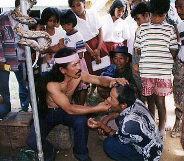 「エイヤ!!」と歯を抜くところ。スラウェシ島・トラジャ地方の山村の市場で