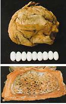 アフリカのギョウレツケムシ科のガ「アナフェ」がつくる巨大繭。集団で生活する行列毛虫の仲間で、100匹ほどの集団で1つの繭をつくる。写真の繭の大きさは10cmほど(写真下は繭の内部)
