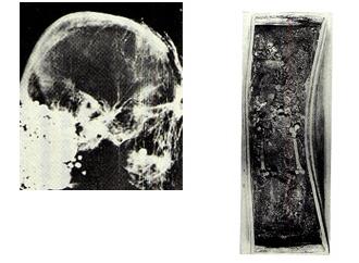 同右の頭蓋骨のX線写真。考古学・人類学・画像解析学・歴史学の研究者が集まり、議論が進められた<資料提供:猪熊兼勝氏><br>藤原鎌足とおぼしき阿武山古墳の人骨と出土状態。日ごとに棺の湾曲が進んだため、もとの石室に納められた<資料提供:猪熊兼勝氏>