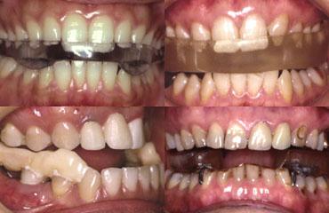 スプリントなどの歯科的治療における、間違った治療例。スプリントで顎関節症が治る割合は45%という(写真提供:丸茂義二氏)