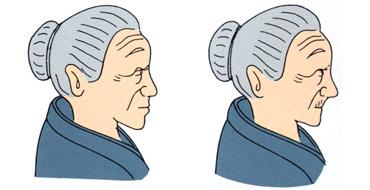 (左)自分の歯にあった位置に並べることで若さを再現することが大切(右)入れ歯を目立たせないように前歯を内側に並べると、唇の支えが不十分となり、口の周りにシワができ、老いが強調されてしまう。<資料提供:早川巌氏>