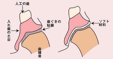 (左)歯ぐきの粘膜は座布団の役割をしている。(右)粘膜が薄くなったら、入れ歯の裏にソフト材料を貼ることで、クッション効果を与えて歯ぐきの負担を軽減する。<資料提供:早川巌氏>