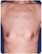 乳ガン患者の手術痕がほとんど分らない状態に再生できた(左は幹細胞液注入前、右は注入後)<写真提供:森 正樹氏>