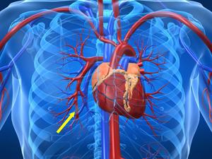 筒状に巻いたり、曲げたりできるハイドロキシアパタイトシートの特性を活かして、血管内部に挿入するステント(人体の管状血管部分)の開発も研究されている<資料提供:本津茂樹氏>