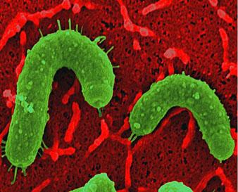 胃がんを引き起こすピロリ菌(緑)の体の表面からは多数の注射針が突き出ている。ピロリ菌はこのミクロの注射針を使って、CagAという発がん物質(タンパク質)を胃の細胞 (赤)の内部に注入する。<写真提供:Dr. Rainer Haas (ドイツ、Max von Pettenkofer研究所)>