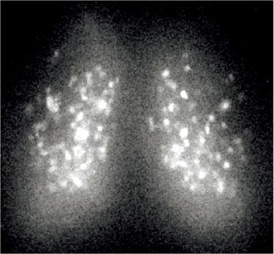 写真はマウスの視交叉上核における時計遺伝子の活動を発光としてとらえたもの<写真提供:明石 真氏>